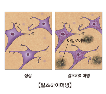 알쯔하이머병